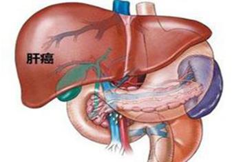手术治疗肝癌效果好吗?