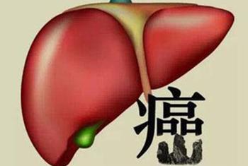 你必须知道的肝癌误区!