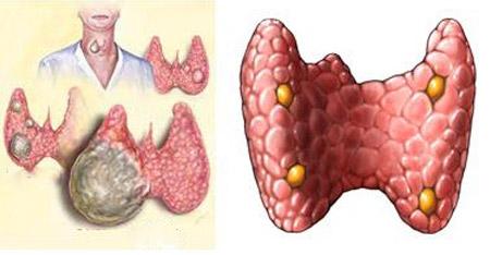 <b>甲状腺癌究竟是怎么回事?</b>
