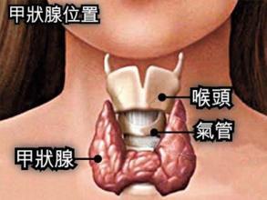 甲状腺癌的早晚期症状