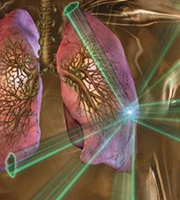 肺部切除,治疗肺癌